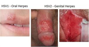 Herpes guys